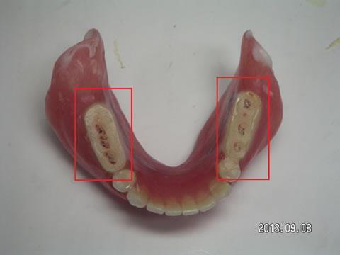 治療用義歯2